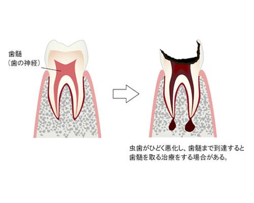 失活歯   歯科用語集   インプラントネット
