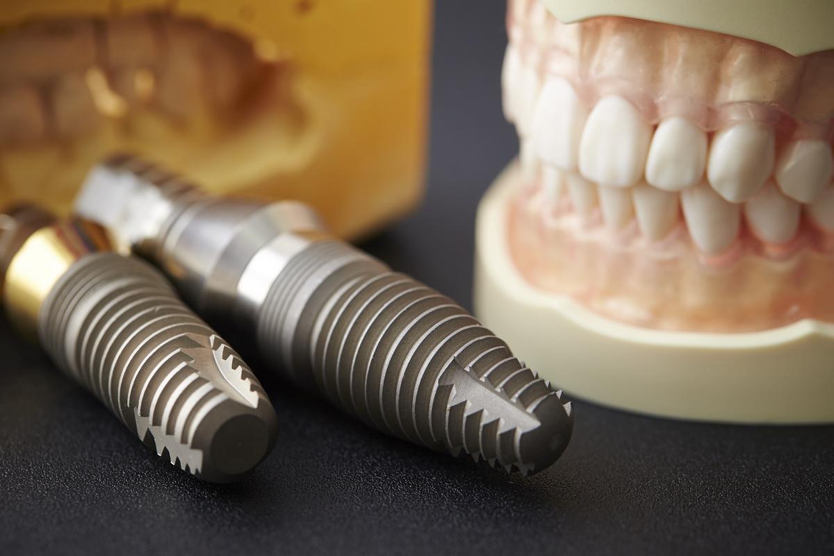 インプラント治療 顎の骨を増やす骨造成手術の費用の相場は?