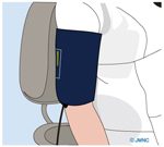呼吸・血圧監視モニターの設置