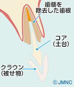 インプラント治療のデメリット