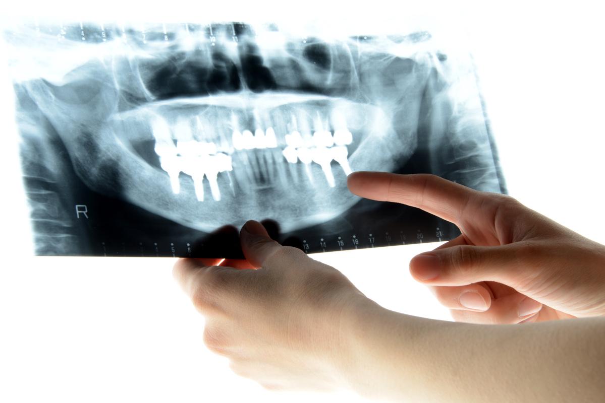 歯科用CT・レントゲンによる被ばく量