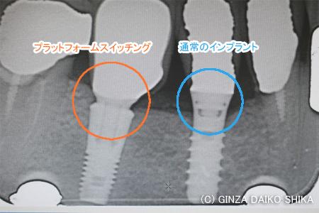骨吸収しにくいインプラントの構造-プラットフォームスイッチング