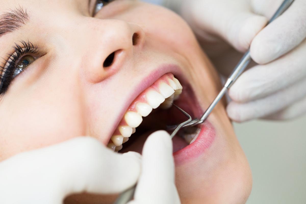 注目!インプラント治療「いい歯医者」の選び方