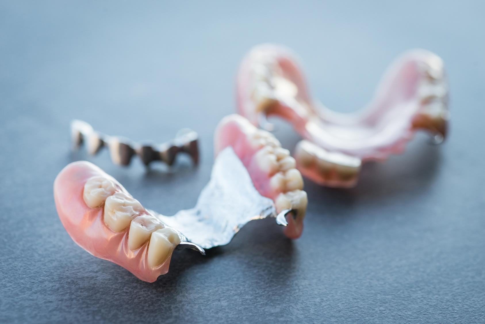 義歯(入れ歯)からインプラントにする場合