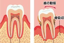 歯周病!骨が足りない!それでも受けたいインプラント