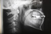 インプラント治療に資格はいるの?歯科医師に必要な知識とは