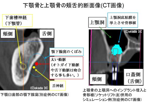 下顎骨と上顎骨の頬舌的断面像(CT画像)