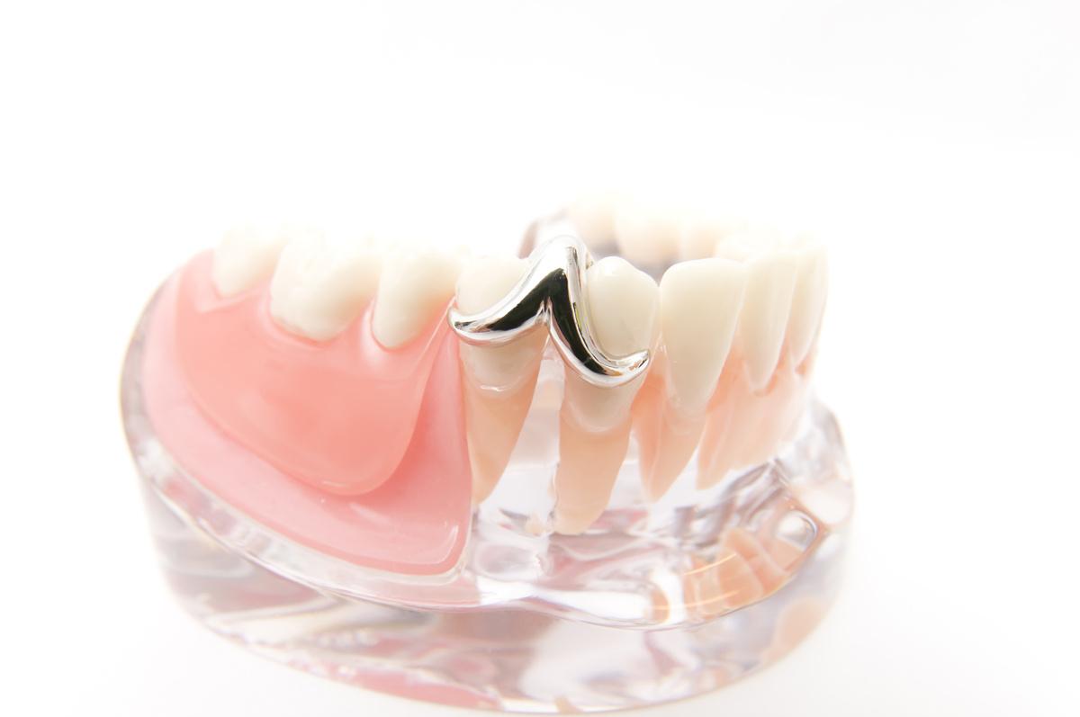部分入れ歯をインプラントに変えることってできるの?