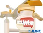 インプラント治療における歯科技工士の役割