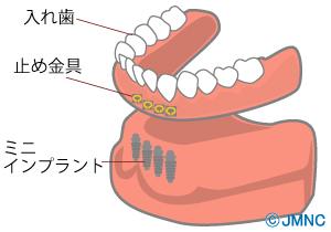 【イラスト解説】インプラントの入れ歯の特徴とは