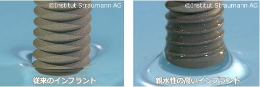 【参考】体液に近い生理食塩水での濡れ性比較