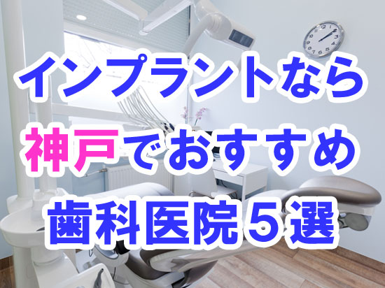 【2020年度版】神戸でインプラント治療するならおすすめの歯科医院5選