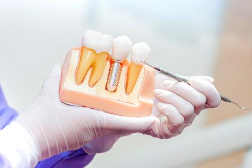 インプラントにも歯石は付く!インプラントでも毎日歯磨きが必要なわけ