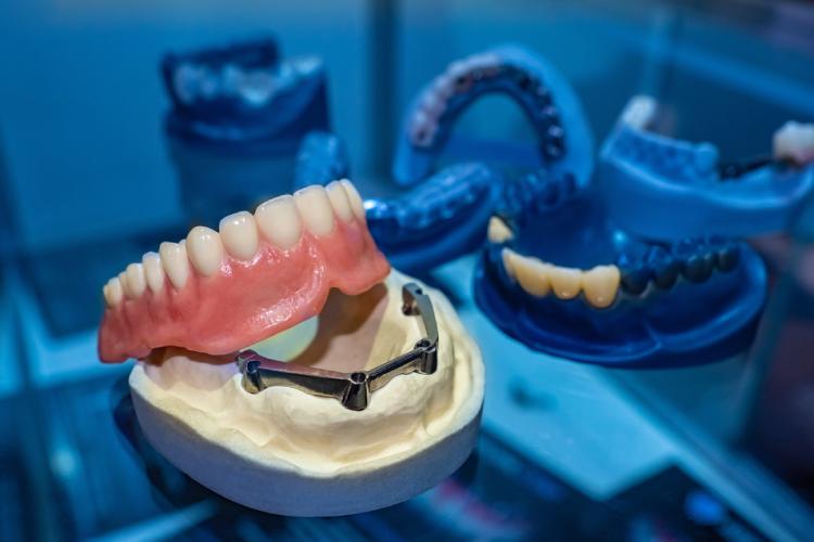 入れ歯がより使いやすくなる!?インプラントオーバーデンチャーとは?