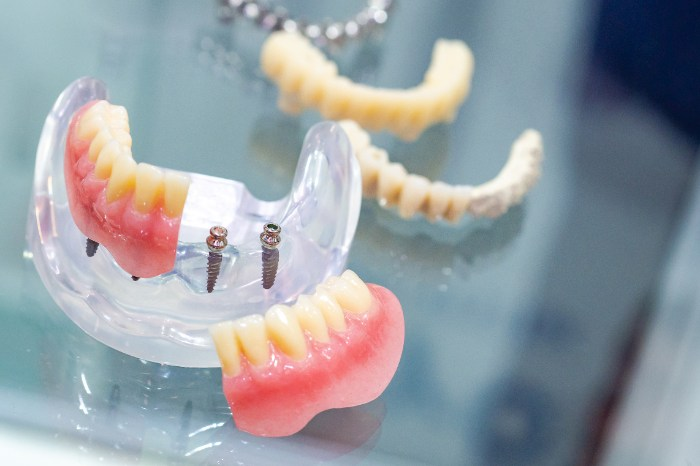 先天性欠損が6歯以上の場合のインプラント治療が公的医療保険適用対象になりました