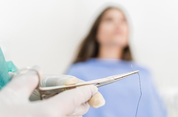 歯茎の切開は必要?不安や疑問を解消!