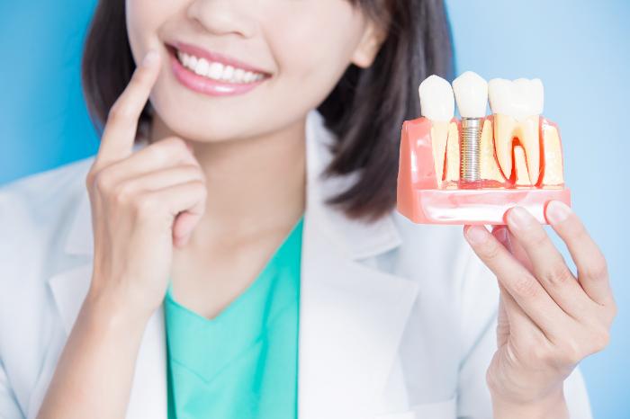 永久歯がなくなった!「第二の永久歯」インプラント治療