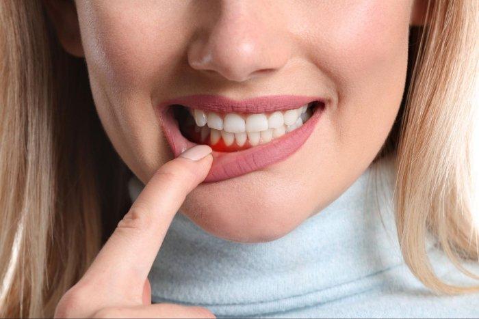 歯周再生療法でインプラントや抜歯を回避できる!?
