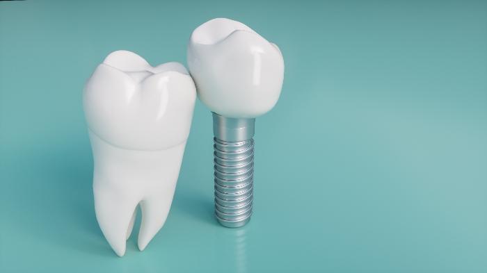 抜歯した7番の治療について 7番にインプラントって必要?