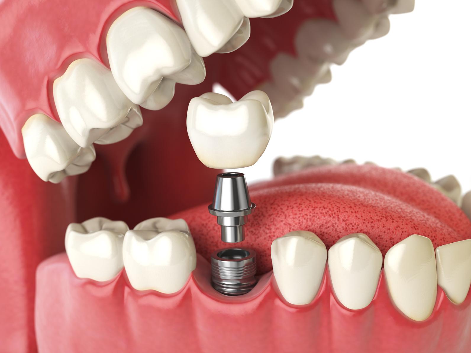 奥歯のインプラント治療のポイント|知っておくべき特徴まとめ