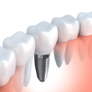 歯のない期間がないインプラント治療