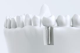 手術当日に被せ物を装着する即時荷重インプラント治療とは?