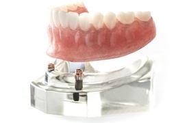 入れ歯やブリッジでお悩みの方インプラント義歯とは?