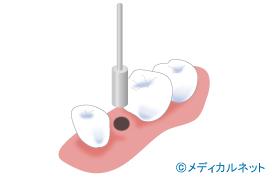 歯茎の切開をしないでインプラント治療を行うフラップレス術式とは?